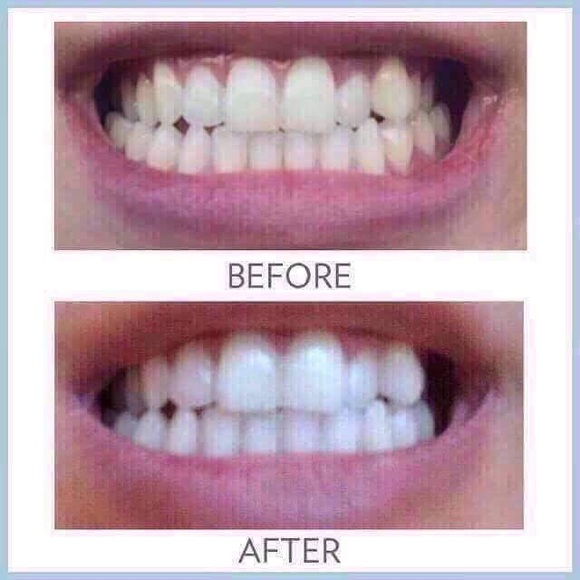 Nuskin Makeup Amazing Teeth Whitening Toothpaste Poshmark